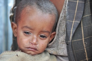 One of Hundreds of Thousands of Children Facing Starvation in the Somali Region
