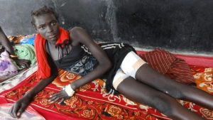 Nyajuok Rial, an Innocent young girl who somehow survived after being targeted during a raid.