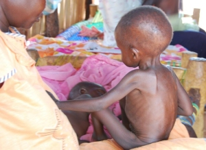 Thousands of Children are battling Malnutrition in the Sudan.
