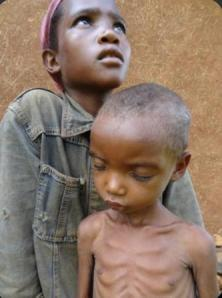 Tigist is 5 years old and came with her elder sister Chaltu who is looking after him. Tigist is severely malnourished.