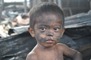 One little boy who lives in the community covered in Ash.